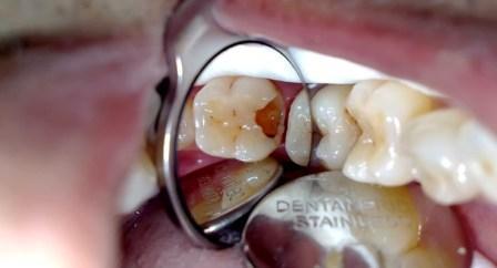 Cara Mengobati Sakit Gigi pada Geraham