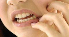 Obat Pereda Sakit Gigi