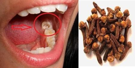 Obat Tradisional Sakit Gigi Terbukti Ampuh