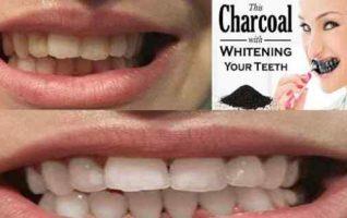 Cara memutihkan Gigi Kuning Dengan Mengunakan Arang