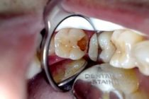 Atasi Sakit Gigi Berlubang – Sudah Pernah Pakai Kantung Teh